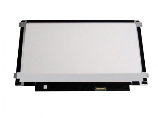 11.6 Laptop Screen Replacement eDP side brackets